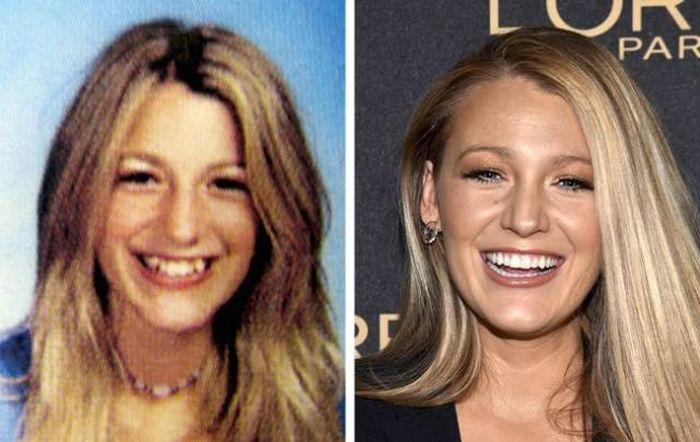celebrities_before_and_after_08