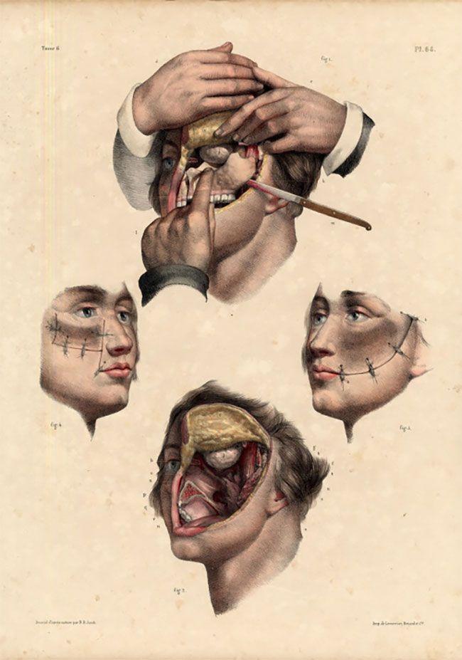 anatomicheskie-kartinki_06