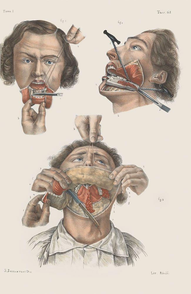 anatomicheskie-kartinki_07