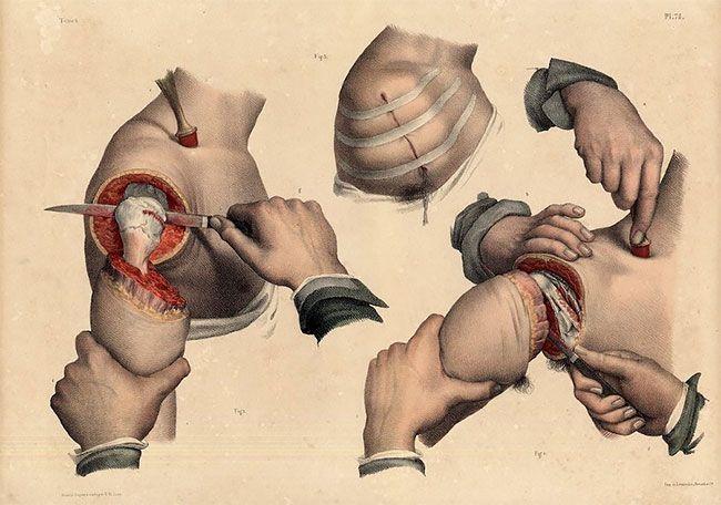 anatomicheskie-kartinki_10