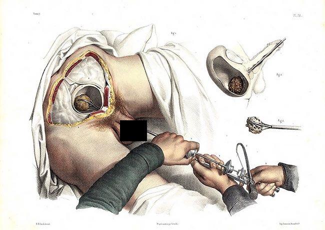 anatomicheskie-kartinki_11