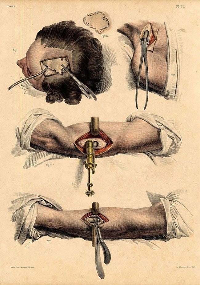 anatomicheskie-kartinki_12