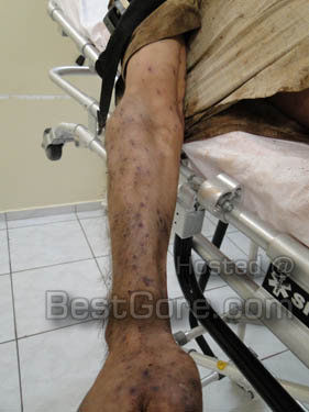 death-by-bee-stings-5000-brazil-02