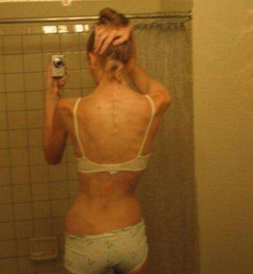 ru_anorexia-028