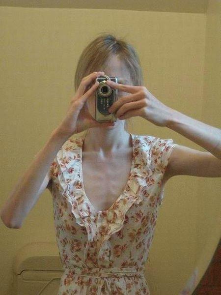 ru_anorexia-020